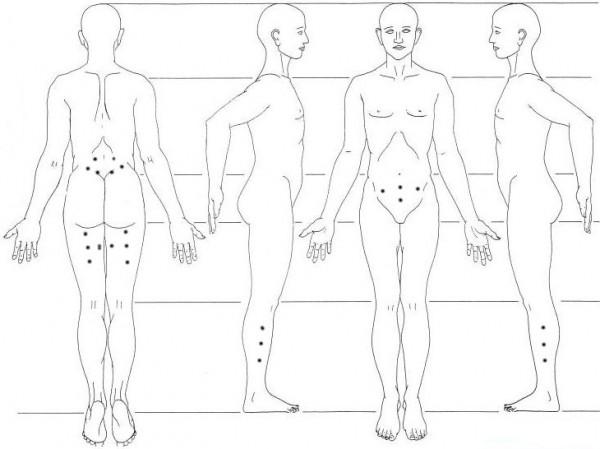 Шиацу, лечение цисталгии